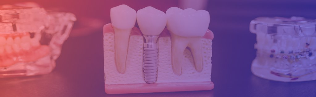 Avcılar Diş Kliniği